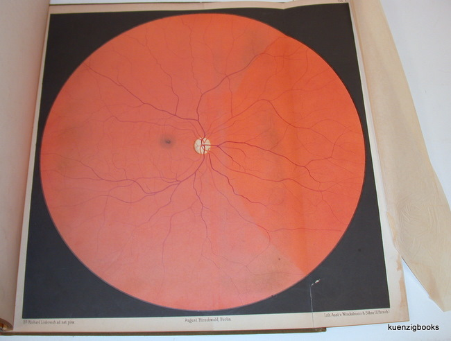 Atlas of Ophthalmoscopy. <a href=