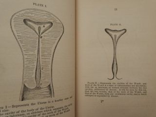 A Treatise of Inflammatory Disease of the Uterus, and its Appendages, and on Ulceration and Enlargement of the neck of the Uterus in which the Morbid Uterine Manifestations and Functional Derangements are explained and illustrated ... second edition, revised and enlarged