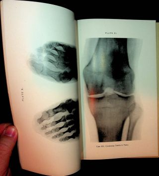 Cases Illustrative of the Practical Application of the Röntgen [ Roentgen ] Rays in Surgery
